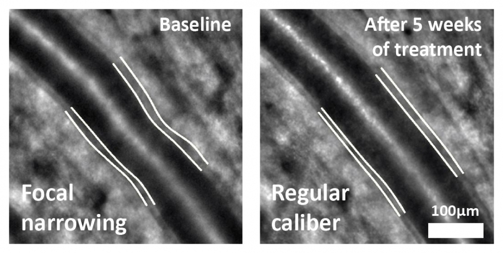 Arteriolar remodeling during antihypertensive therapy. With the rtx1 micron-precision alignment of follow-up images , the change in the artery wall structure is easily confirmed. Initial iamges provided by Dr Rosembaum, Pitié-Salpétrière Hospital, Paris, France
