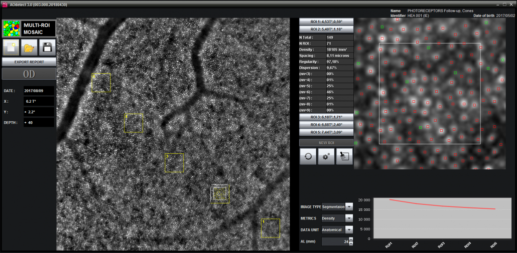 AOdetect Mosaic - Multi-ROI mode