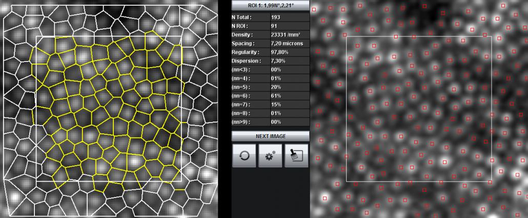 AOdetect Mosaic - Segmentation of parafoveal cone cells