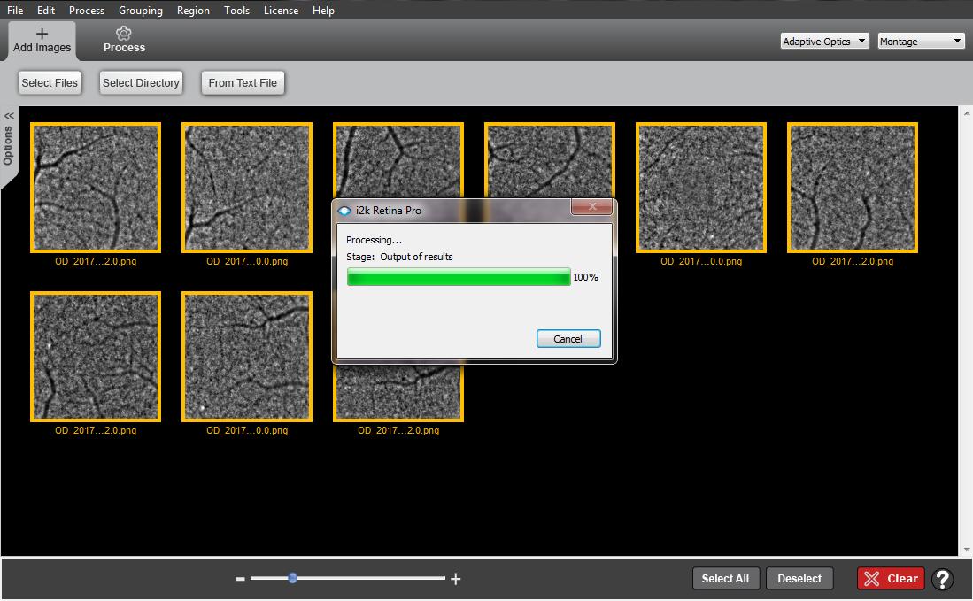 i2k retina ao auto montage software imagine eyes