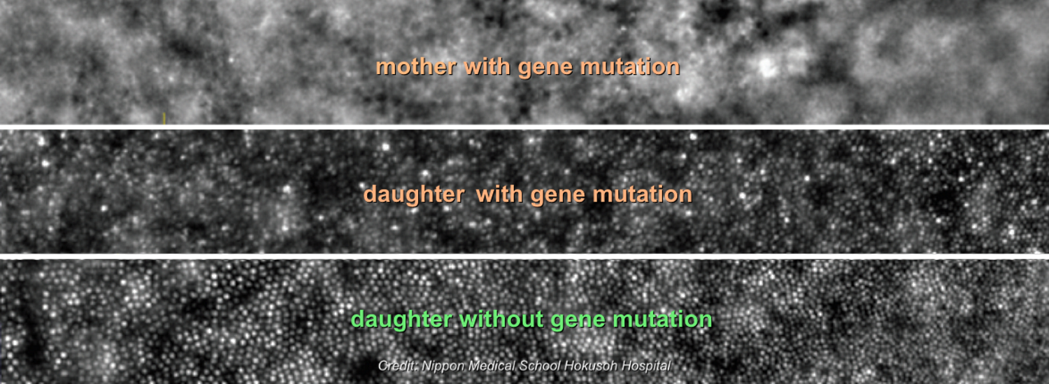 Adaptive optics images of eyes with and without mutation in the HK1 gene causing retinitis pigmentosa